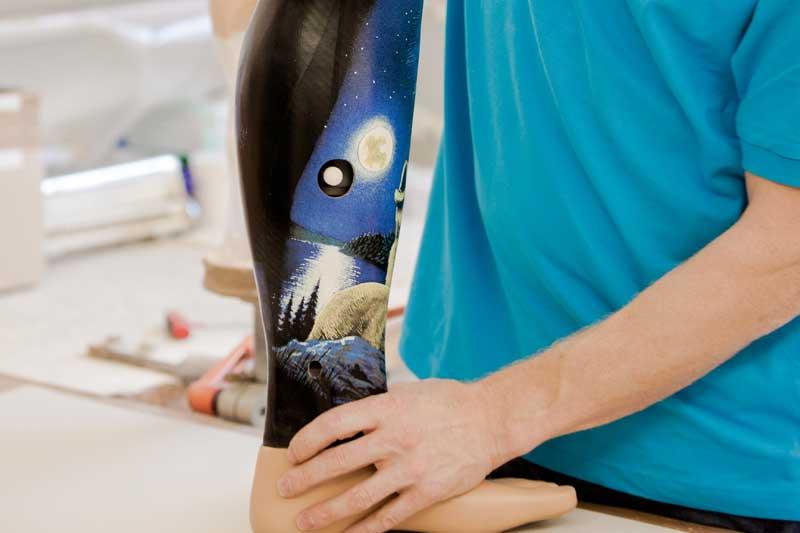 Prothese - Orthopädie Jäckle